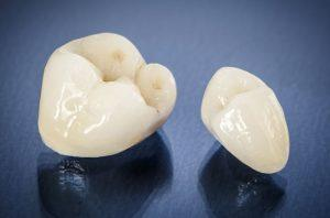Same-Day CEREC Dental Crown