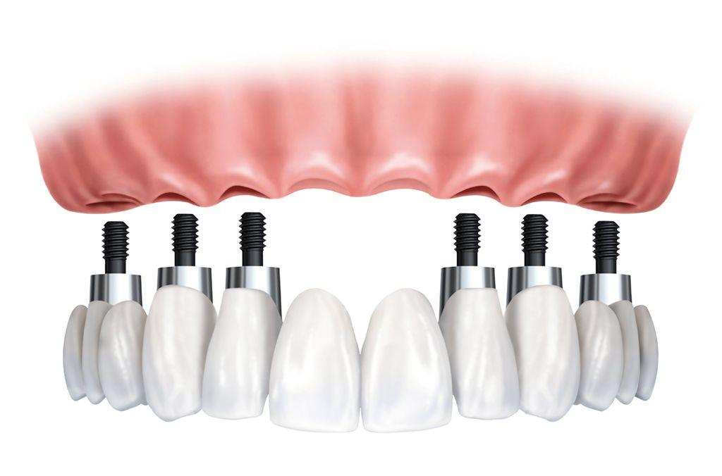 Implant supported dentures – upper jaw