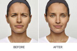 Cosmetic Injectables & Wrinkle Relaxers