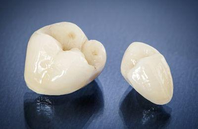 Dental Crowns Gosnells
