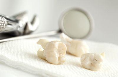 Wisdom Tooth extraction Gosnells