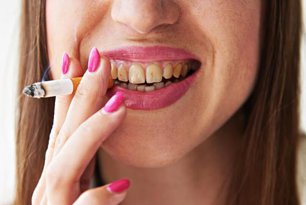 Smoking and Dental Health Problems