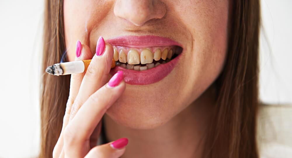 Smoking and Dental Health Problems