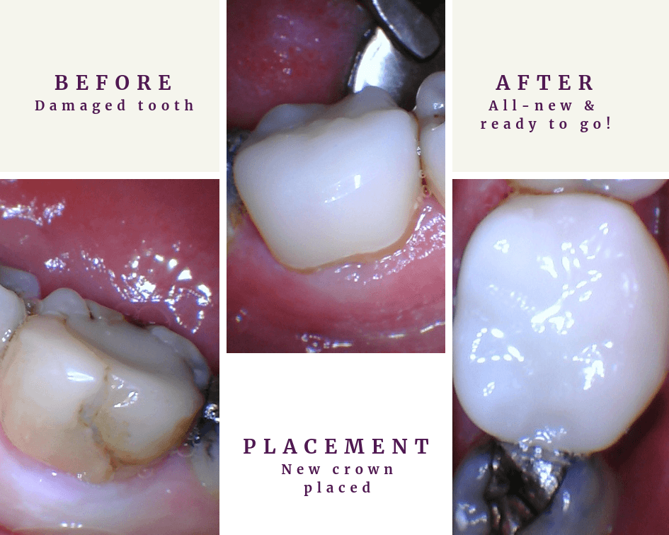 Same Day Cerec Crown before and after